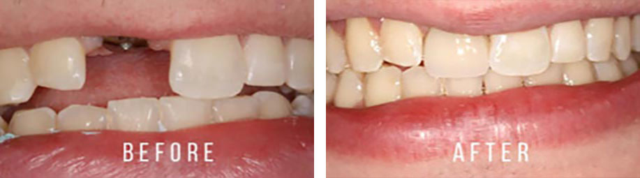 Crestwood dental group cosmetic dentistry case 02